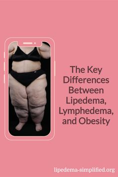 Let's learn about the differences between lipedema, lymphedema, and obesity from our guest speaker, Stanley G. Rockson, MD. He is the Allen and Tina Neill Professor of the Lymphatic Research and Medicine at Stanford University School of Medicine. He is also Stanford's Chief of Consultative Cardiology and the director of the Stanford Center for Lymphatic and Venous Disorders. Know more here. Guest Speakers, Stanford University, Cardiology, Disorders, Professor, Medicine, Health Fitness, Wellness, Exercise