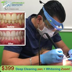 Hurry up! 🍎Special offer at $399: Deep Cleaning (SRP) + Whitening Zoom! 🍏Affordable Dentistry of Hollywood 👉http://www.affdentistry.com 🏥Address: 2219 Hollywood Blvd #104, Hollywood, FL 33020 📞Ph 24/7 & Emergency: (786)808-9988, (954)589-2176 🕙Mo to Fr 9am-6pm; Sa 9am-1pm #affdentistry #miamidentist #miamiorthodontist #miamismiles #miamibeauty #miamilife #brickell #miamievents #downtownmiami #miamistyle #southmiami #miamiart #southbeachmiami #miamiliving #sunnyisles #northmiami…