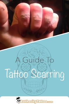 Getting a new tattoo, only for it to scar up afterwards, can be extremely disappointing. We describe what tattoo scarring is, how it happens, and how to fix it. Ayurvedic Home Remedies, Natural Cold Remedies, Homeopathic Remedies, Body Art Tattoos, New Tattoos, Tattoo Fixes, Scar Tattoo, Tattoo Aftercare, Natural Medicine