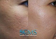 Skin care the natural way works Laser For Acne Scars, Laser Acne Scar Removal, Acne Skin, Glowing Skin, Cool Style, Skin Care, Asian, Beauty, Natural
