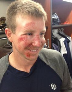 It's safe to say Elliot Johnson has learned his lesson about sliding on his face