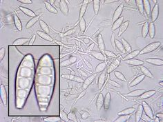 Microsporum canis is a cosmopolitan zoophilic dermatophyte usually acquired from infected dog.