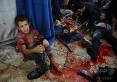 A wounded Syrian boy sits on the floor next to men receiving treatment at a make-shift hospital in the rebel-held area of Douma, east of the capital Damascus, following reported air strikes by regime forces, on August 12, 2015. (c)AFP/ABD DOUMANY
