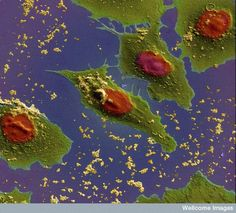 B0008726 Lung cancer cells treated with nano sized drug carriers | Flickr - Photo Sharing!