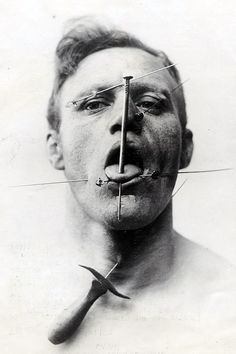 The Pierced Man, a circus performer from the 1930s