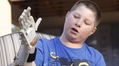 In this photo taken Friday, Aug. 23, 2013 Dylan Laas shows how his Robohand works during an interview with the Associated Press in Johannesburg. Laas who was born with Amniotic Band Syndrome, got his hand from carpenter, Richard van As who lost four fingers to a circular saw two years ago and started workin on building the Robohand after seeing a video posted online of a mechanical hand made for a costume in a theater production. Since then van As has fitted Robohands on about 170 people…