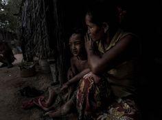 """""""La province cambodgienne de Svay Rieng est aux premières loges du conflit entre le Viêt Nam et les États-Unis. Officiellement, elle n'a jamais été la cible de ces arrosages de défoliants qui visaient à déloger l'ennemi des forêts au Viêt Nam et au Laos. Mais certains de ces villageois cambodgiens portent les stigmates de ce que leurs grands-parents ont ingéré à l'époque.""""... https://www.sciencesetavenir.fr/sante/l-agent-orange-continue-a-faire-des-victimes-au-cambodge_116198"""
