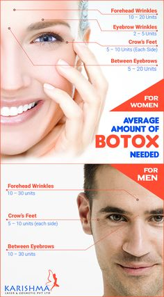 leipzig Get effective treatment for Botox Treatment In Pune. Call today for book an appo. Get effective treatment for Botox Treatment In Pune. Call today for book an appointment for beautiful. Botox Injection Sites, Botox Injections, Botox Fillers, Dermal Fillers, Lip Fillers, Pune, Botox Clinic, Botox Lips, Facial Aesthetics