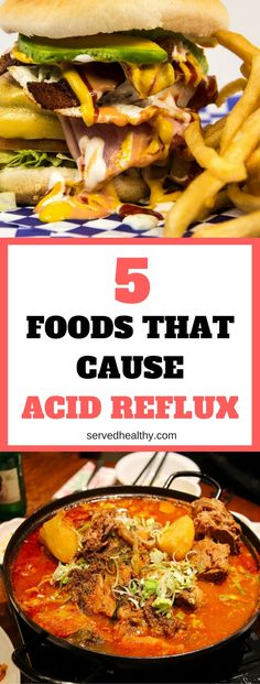 5 Foods That Cause Acid Reflux And find out what acid reflux food can help you! Acid Reflux Remedies 5 Foods That Cause Acid Reflux And find out what acid reflux food can help you! Acid Reflux Remedies | Health Tips & Hacks