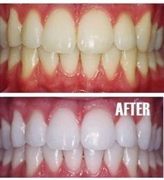 teeth whitening trick: -  Put a tiny bit of toothpaste into a small cup, mix in one teaspoon baking soda plus one teaspoon of hydrogen peroxide, and half a teaspoon water. Thoroughly mix then brush your teeth for two minutes. Remember to do it once a week until you have reached the results you want.