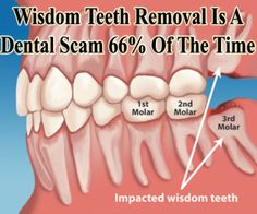 Though many people want to remove their isdom teeth, there are research that says wisdom teeth is helpful to our body. http://www.extremenaturalhealthnews.com/wisdom-teeth-removal-is-a-dental-scam-66-of-the-time/