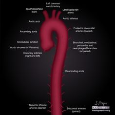 Illustrations of the thoracic aorta and its branches. See article for more information. Subclavian Artery, Carotid Artery, Medical Illustrations, Rad Tech, Radiology, Branches, Diagram, Heart, Life