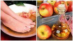 Gebruik azijn om je voeten te verzorgen — Gezonder Leven