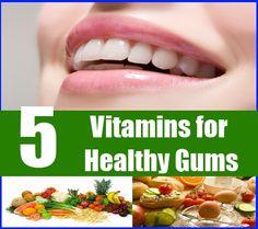 healthy food herbs for teeth gums   Important Vitamins Aiding Healthy Gums