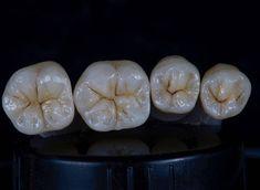 画像に含まれている可能性があるもの:食べ物 Dental World, Dental Life, Dental Art, Dental Jobs, Dental Teeth, Dental Training, Dental Pictures, Dental Photography, Dental Posters