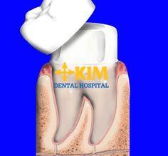 Những chia sẻ về kinh nghiệm chụp răng sứ không chỉ là trợ thủ đắc lực giúp bạntránhgặp phải những sai lầm đáng tiếc mà còn mách cho bạn những mẹo hay và lưu ý để đạt được hiệu quả phục hình răng hoàn hảo
