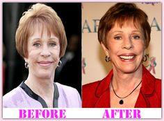 Springfield facial plastic surgery