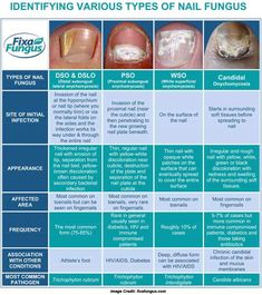 List of 11 Common Nail Problems Everybody Ignores : Nail care has become an important part of personal grooming because it helps prevent nail infection. Know the 11 Common Nail Problems from Fungus to Hangnails Toe Fungus Cure, Toe Fungus Remedies, Toenail Fungus Medicine, Treating Toenail Fungus, Nail Disorders, Hangnail, Fungal Nail Infection, Student Nurse, Fungi