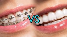 Freshen your breath with clean teeth. URBN Dental offers dental cleaning and teeth polishing services in Houston. Find our experienced & qualified Dentists for teeth polishing, scaling, and dental cleaning near me. Invisalign Vs Braces, Lingual Braces, Ceramic Braces, Types Of Braces, Misaligned Teeth, Smile Care, Teeth Alignment, Invisible Braces, Dental Health