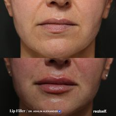 Even if you don't want bigger lips. Dermal Fillers, Lip Fillers, Lip Injections, Lip Plumper, Big Lips, Your Lips, Swollen Lips, Nasolabial Folds, Lip Augmentation