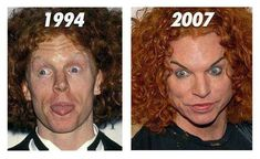 The Failure Of Carrot Top Plastic Surgery : Carrot Top Plastic Surgery Like a MOnster. Carrot top plastic surgery like a monster. Bad Celebrity Plastic Surgery, Botched Plastic Surgery, Bad Plastic Surgeries, Plastic Surgery Gone Wrong, Plastic Surgery Photos, Celebrity Surgery, Worst Celebrities, Celebs, Celebrities Fashion