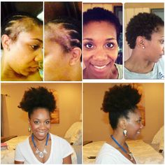 Fight Alopecia Naturally | 10 Steps To Restoration