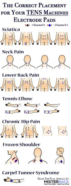 Cupping Therapy, Massage Therapy, Fitness Workouts, Tens Electrode Placement, Tens Unit Placement, Qi Gong, Drug Free, Pain Management, Physical Therapy