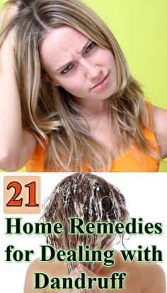 21 home remedies for dealing with dandruff (Pinning this to show to my brother)