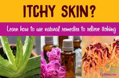 Remedies For Headaches Remedies for Itchy Skin - Is itchy skin upsetting your equilibrium? At a minimum, it's annoying. At worst, scratching can lead to bleeding and sores. Learn how to use natural remedies to relieve itching. Home Remedy For Headache, Home Remedies For Skin, Headache Remedies, Natural Remedies, Beauty Tips For Skin, Skin Care Tips, Beauty Tricks, Homemade Skin Care, Organic Skin Care
