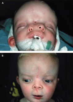 I pinned a picture of this boy with craniofacial duplication before.  He's now had surgery!