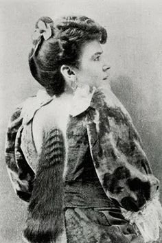 Who had growing from the center of her back, between the shoulders, a veritable mane of long black hair, which doubtless proceeded from a form of Naevus Pilosus, Circa 1896