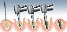 dental implants procedure........