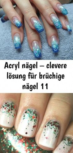 Acrylic nails - clever solution for brittle nails 11: Acrylic nails - clever ......#acrylic #brittle #clever #nails #solution #HairLossShampoo #WhyHairLoss #HairLossTreatmentHerbal #FemaleHairLoss #BestHairLossShampoo Argan Oil For Hair Loss, Biotin For Hair Loss, Castor Oil For Hair, Hair Loss Shampoo, Hair Oil, Biotin Hair, French Nails, Baby Hair Loss, Nail Conditions