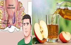 Hemorrhoids 24 Hours Natural Cure - Have you heard about the 24 hours hemorrhoid treatment? It is as effective as surgeries, you will only need natural ingredients that includes. – Apple cider vinegar. – Rutin. – Vitamin B6. . Rutin is a plant extract commonly known as fast hemorrhoid cure. It was reported by... - Cure, Hemorrhoids, Hemorrhoids 24 Hours Natural Cure, Hemorrhoids Natural Cure, Natural Cure - Health, health care, other