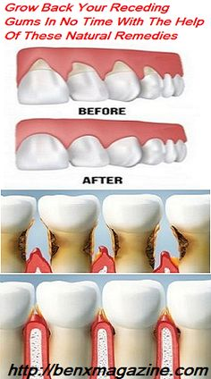 Sagging Skin Remedies Grow Back Your Receding Gums In No Time With The Help Of These Natural Remedies Gum Health, Oral Health, Dental Health, Dental Care, Health Care, Teeth Health, What Causes Tooth Decay, Remedies For Tooth Ache, Swollen Gum