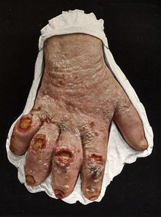 The unreported American leprosy colony-and the Christians who ignore it