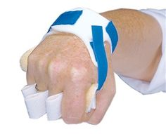 AliMed Palm Guard with Finger Separators has all the features of the standard Palm Guard plus finger separators that can be used as loops for maximum stabilization or as interdigital tabs when it's too difficult to thread the loops through fingers. #PtSafety