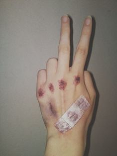 Bruised and bloodied hand