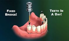 Teeth in a Day - Hybrid Fixed Bridge. Used to replace all upper or lower teeth. It does not come out! Very Cool. Nevada, Las Vegas, Teeth In A Day, Gold Hill, Dental Crowns, Dental Services, Dental Implants, Dentistry, Missing Teeth