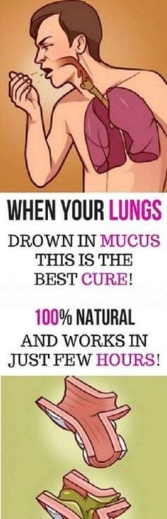 When Your Lungs Drown In Mucus,This Is The Best Cure! It's Natural And Works In Just Few Hours!The accumulation of mucus in the lungs leads t Natural Home Remedies, Natural Healing, Herbal Remedies, Health Remedies, Natural Oil, Holistic Remedies, Cold Remedies, Natural Beauty, Holistic Healing