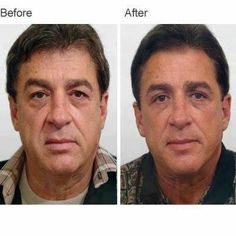 Reduce face and neck wrinkles with refreshing facial exercises. Look younger with face yoga workouts: Slimming a chubby face and toning your face and neck using facial aerobics exercises Nu Skin, Face Skin, Anti Aging Tips, Anti Aging Skin Care, Skin Care Regimen, Skin Care Tips, Sagging Face, Face Lift Exercises, Face Tone