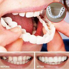 15 Best Cosmetic veneers images in 2019 | Veneers teeth