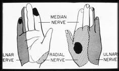 Surgery for Cubital tunnel syndrome (pictures of surgery and information of recovery)