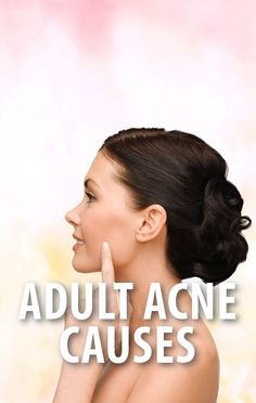 Dr Oz: Adult Acne Causes + Hand Cream Ingredients To Avoid Before Bed Acne Blemishes, Acne Scars, Beauty Secrets, Beauty Hacks, Acne Causes, Body Love, Acne Remedies, Health Facts, Hand Cream