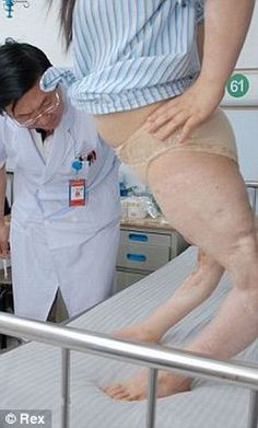 Xiao Fang, 22, had her legs twisted the wrong way round after a car crash when she was 7.   15 years later Chinese surgeons have straightened her legs and hope that she will be able to walk once again