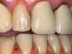 Denta Seal Perfect Teeth, Perfect Smile, Teeth Whitening Cost, Tartar Removal, Dental Check Up, Dental Technician, Tooth Sensitivity, Tooth Enamel, Dental Health