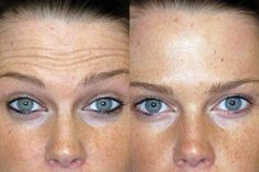 Mujer Maria Jose, Covergirl, Rid, Skin Care, Health, Layers Of Skin, Evening Hair, Dark Spots On Face, Under Eye Bags