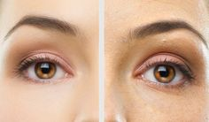 Tear Troughs - A simple and relatively painless procedure. It takes around 30 minutes and results can be seen instantly.