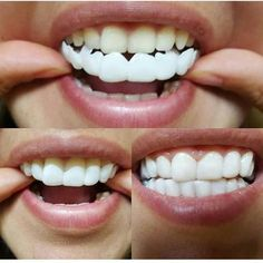 snap on smile teeth veneers cost Smile Dental, Smile Teeth, Teeth Care, Dental Teeth, Dental Care, Veneers Teeth Cost, Dental Veneers, Perfect Teeth, Perfect Smile