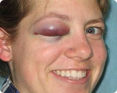 Swollen Black Eye BE07